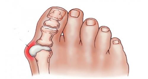 oignon pied douleur