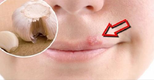 Des remèdes maison pour soulager rapidement l'herpès labial