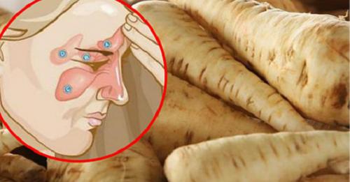 Comment combattre l'infection des sinus paranasaux en 5 jours, et se libérer des maux de tête