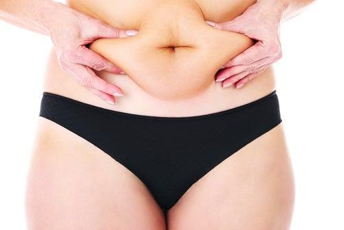 femme ayant trop de ventre