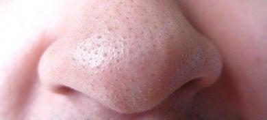 Traitement-contre-l'acné