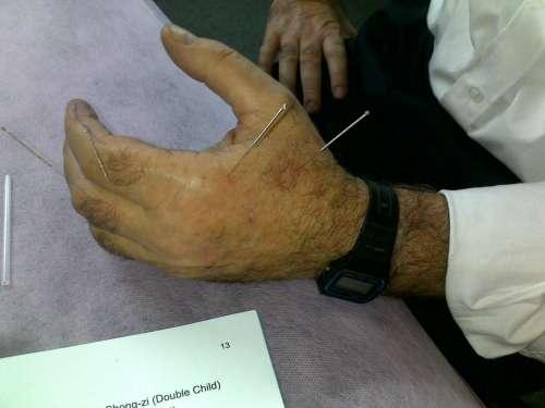 Traitement avec acupunture de la main