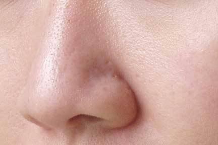 pores dilatés du nez