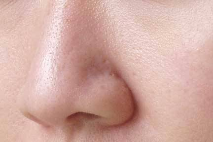 pores-dilatés