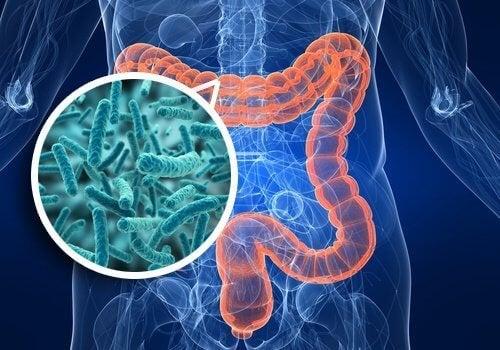Prolifération bactérienne intestinale