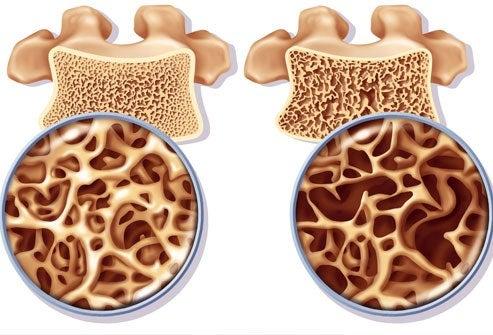 Prévention et traitements de l'ostéoporose chez la femme