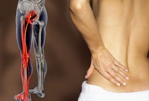 Les meilleurs exercices pour soulager le nerf sciatique