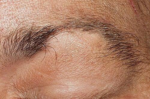 Traitement contre l'alopécie des sourcils et des cils