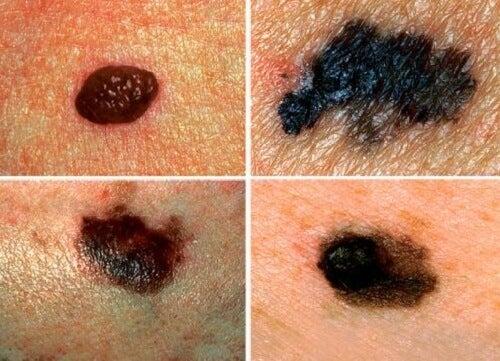 4 signes du corps qui indiquent que quelque chose fonctionne mal Cancer-de-la-peau