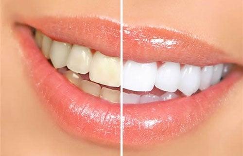 8 aliments qui provoquent un jaunissement des dents
