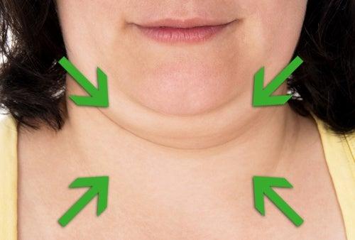 Exercices pour réduire le double menton