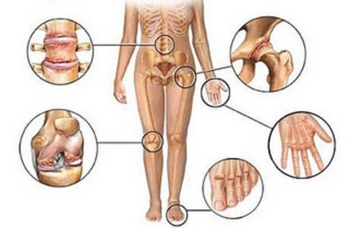 Anti-inflammatoires naturels bons pour les articulations