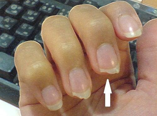 Qu'est-ce que se ronger les ongles dit de votre personnalité : mimétisme