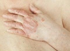 Le psoriasis de la variété de la maladie de la photo