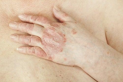 Le psoriasis peut-il se soigner ?