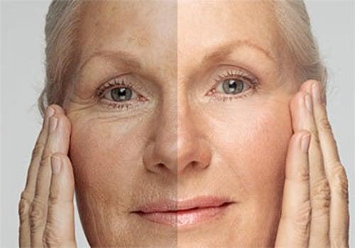 Découvrez l'âge de votre peau et les façons de la rajeunir