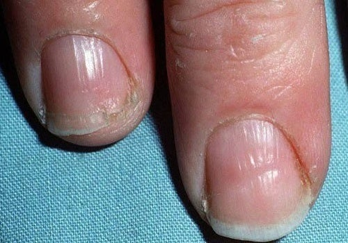 des ongles