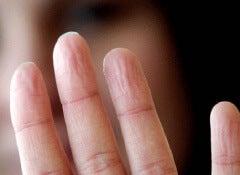 doigts-ridés-500x333