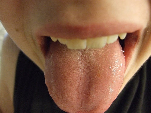 Les signaux de la langue sur notre état de santé