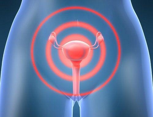Les fibromes : symptômes et remèdes naturels