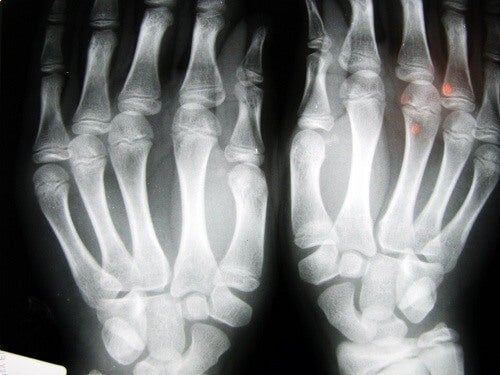 Ostéoarthrite liée aux doigts.