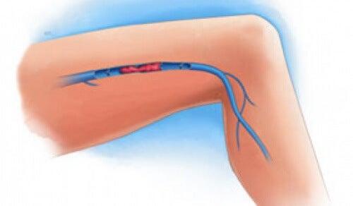 Symptômes d'une thrombose veineuse dans les jambes