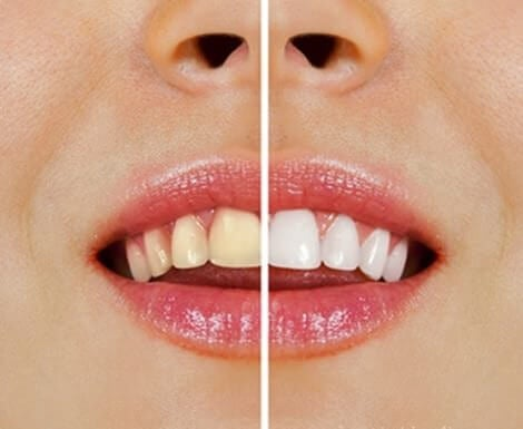 Les aliments qui jaunissent vos dents