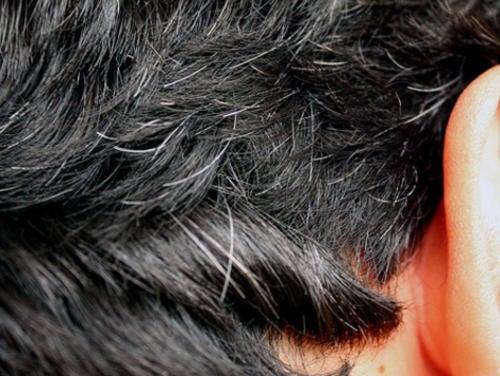 Remèdes contre les cheveux blancs prématurés