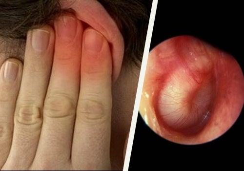 cérumen dans l'oreille