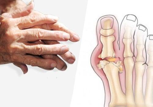 arthrite des mains et pieds