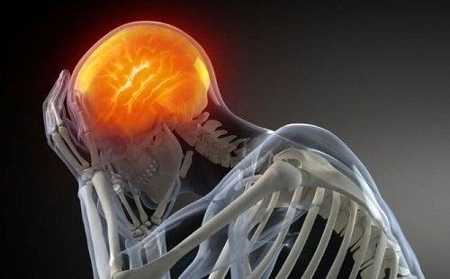 Les analgésiques contre le mal de tête.