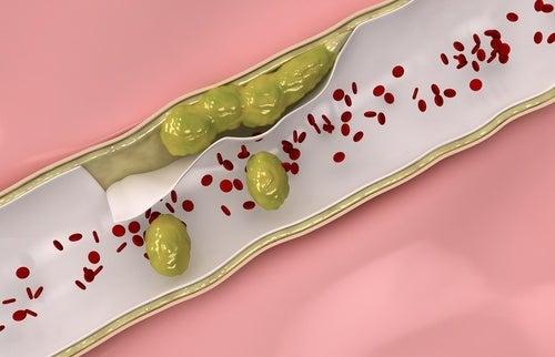 3 infusions médicinales pour renforcer et nettoyer ses artères et ses veines