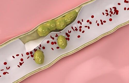 3 infusions médicinales pour renforcer et nettoyer les veines et les artères