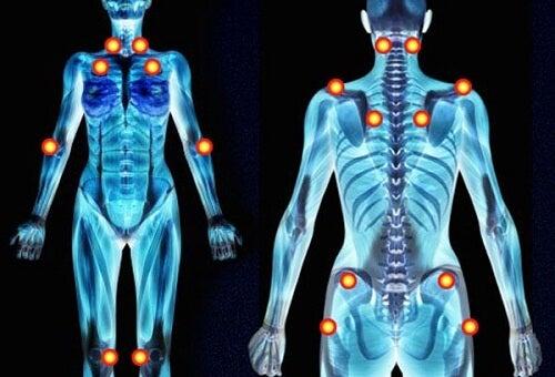 Points-de-douleur-fibromyalgie
