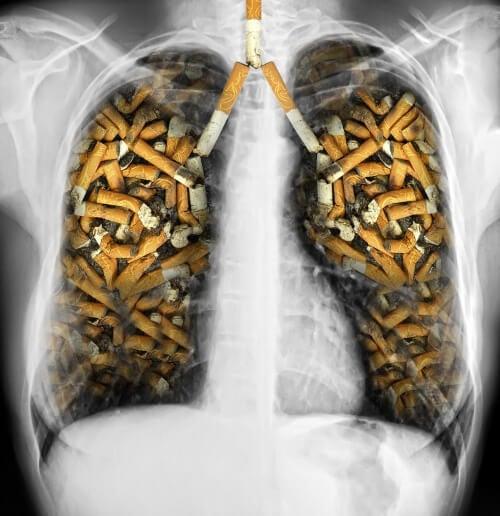Poumons-cigarettes-500x516