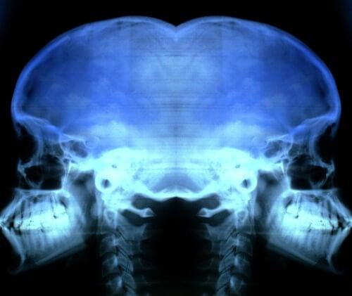 Remedes-maison-contre-l'osteoporose-500x421