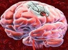 Sante-vasculaire-cerebrale-500x360
