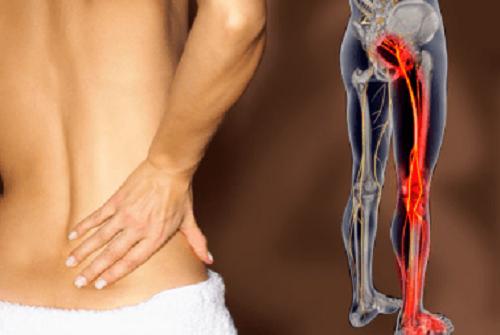 8 remèdes naturels pour soigner la douleur sciatique