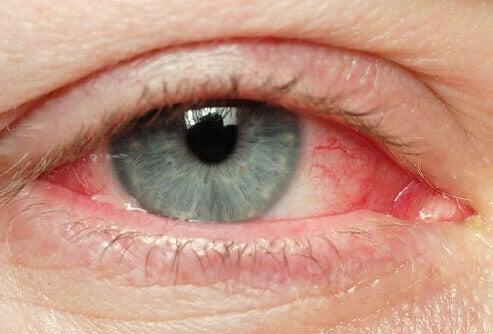 maquillage yeux irrites