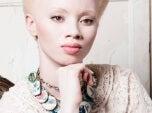 albinisme-1-500×290