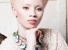 albinisme-1-500x290