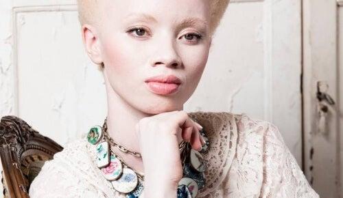 Albinisme : l'exemple émouvant de la top-model Thando Hopa