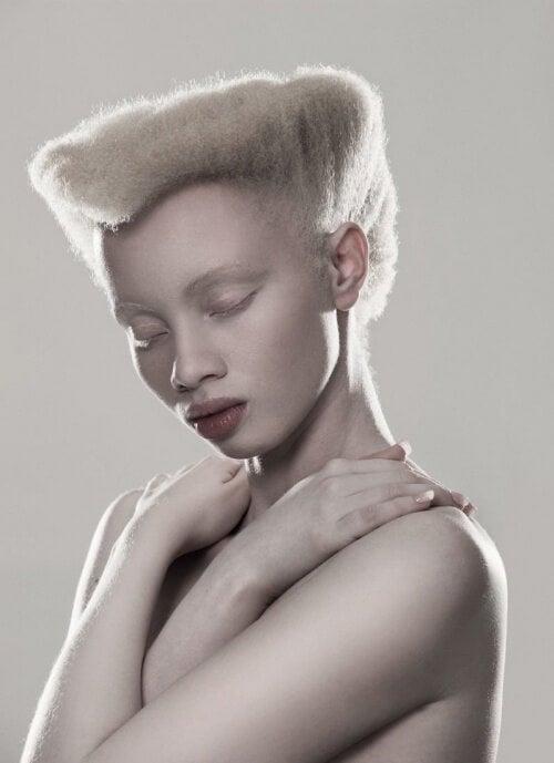 albinisme-500x689