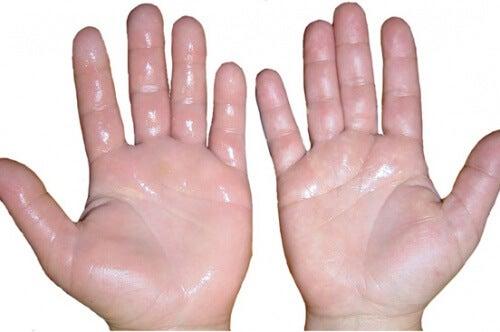 6 remèdes maison pour désenflammer les mains