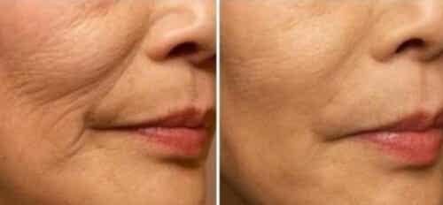 Comment éviter les rides autour de la bouche ?