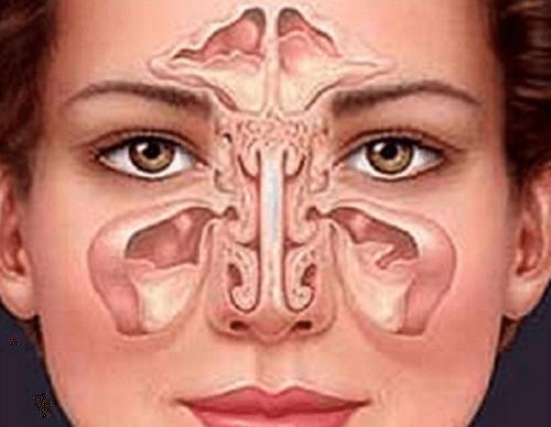 Soigner naturellement la sinusite
