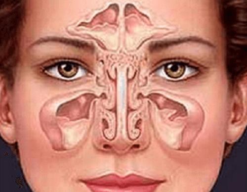 Comment soigner naturellement la sinusite ?