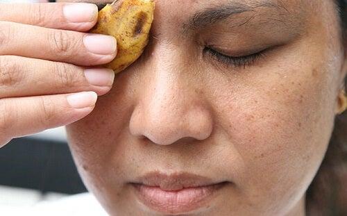 éliminer l'acné