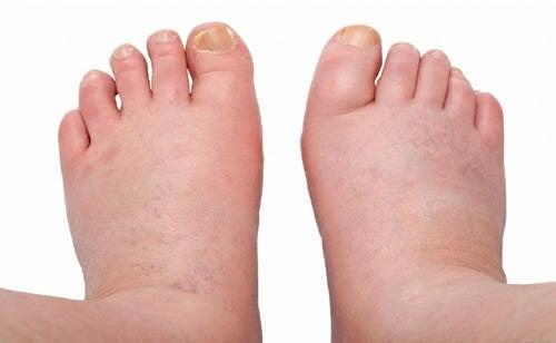 Remèdes maison pour les pieds et chevilles gonflés