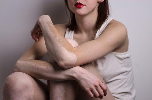 Quelles-sont-les-causes-du-vitiligo-?